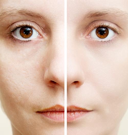 Confronto pelle viso donna