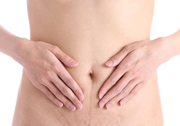 Smagliature corpo donna