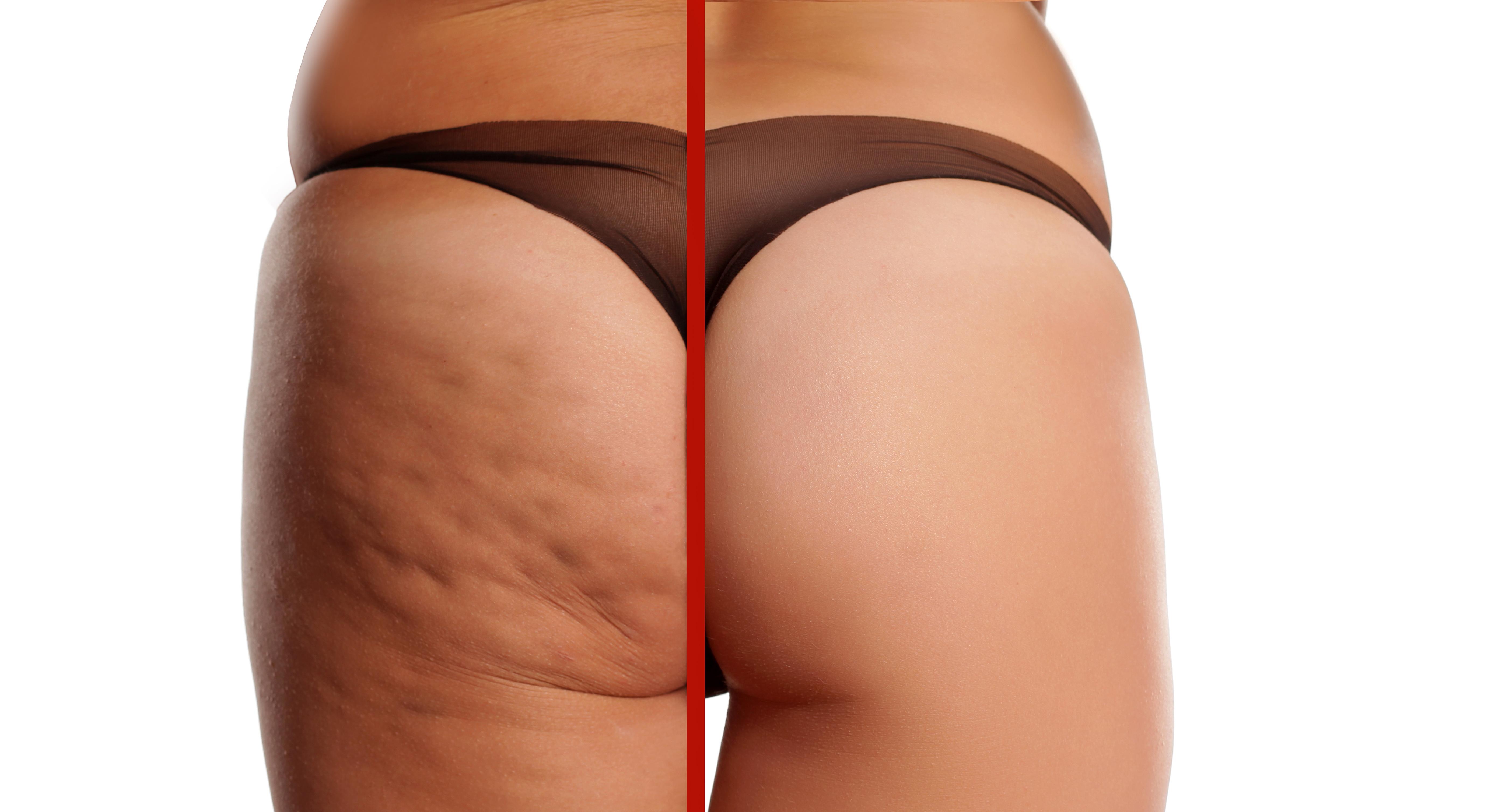 Confronto Glutei donna con e senza cellulite
